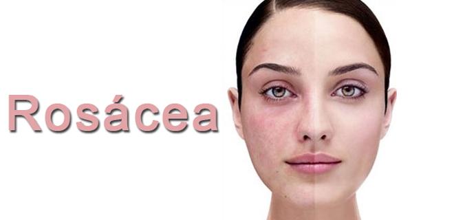 Rosacea-Ltd IV for Ocular and Facial Rosacea