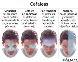 migrañas cefaleas